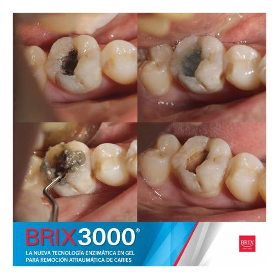 BRIX - Brix3000